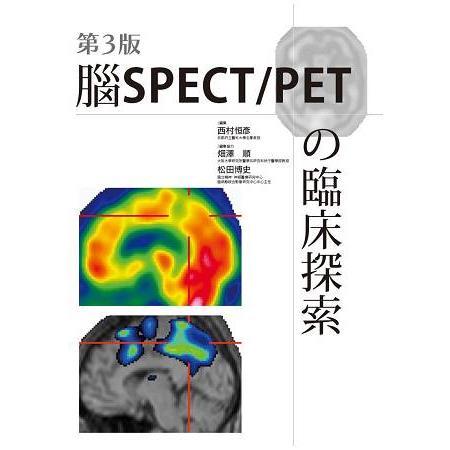 第3版 腦SPECT/PET?臨床探索