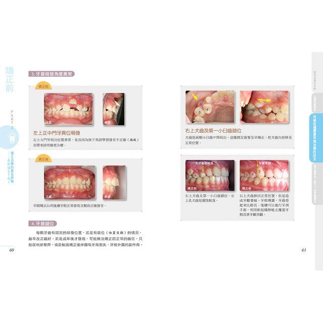 完全解析 牙齒矯正的細節諮詢與日常照護關鍵解惑