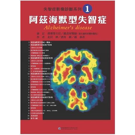 失智症影像診斷系列1 阿茲海默型失智症