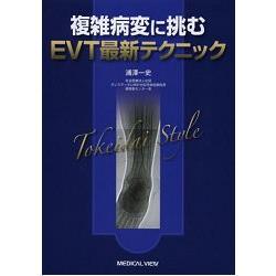 挑戰複雜病變的EVT最新技術-Tokeidai Style